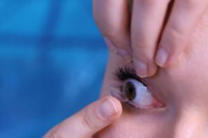 Einsetzen-Kontaktlinse